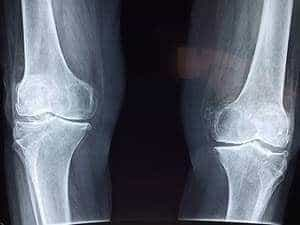 Arthritis of the bones and joints